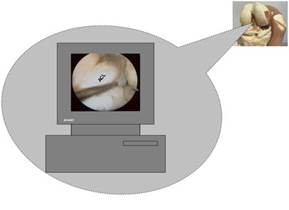 Anterior Cruciate Ligament (ACL) Reconstruction Surgery Arthroscopic appearance of normal Anterior C