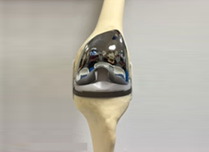 Replaced Knee Joint- Front View