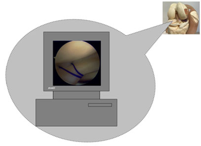 Arthroscopic repair of a torn meniscus – photo showing passing of stitches to repair the detached an