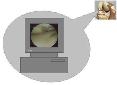 Cartilage injury
